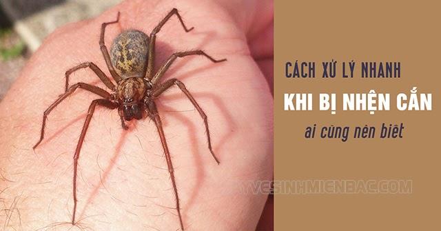 phương pháp xử lý nhanh khi bị nhện cắn